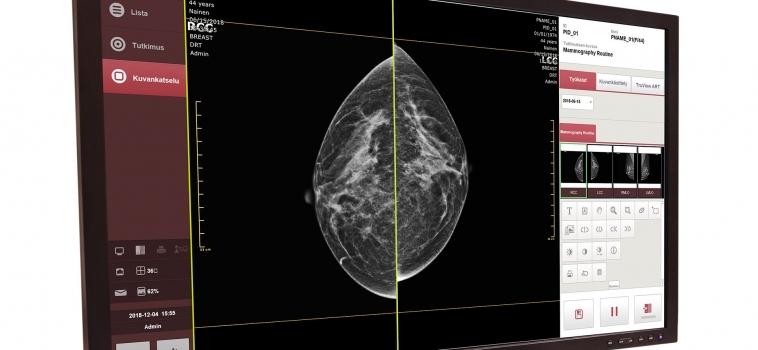 Innomentariumin mammografian digitalisointiratkaisu kliinisessä kuvanlaadun validoinnissa – raportti kertoo erinomaisista tuloksista