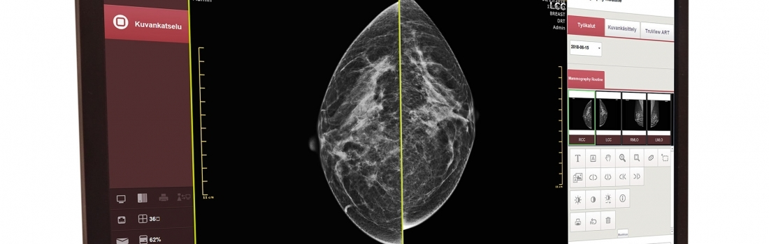 Innomentarium's digital solution for mammography imaging has been clinically validated – results are extremely good